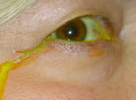 Overflow of tears shown by yellow dye