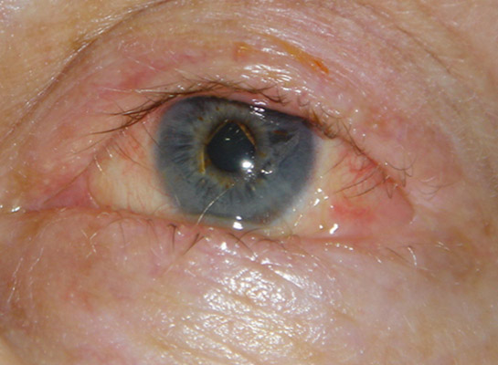 Upper and Lower Lid Entropion (arrows) in Ocular Cictricial Pemhigoid