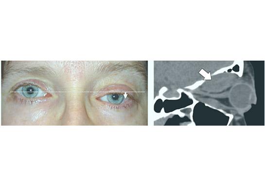 Very gradual depression of the left eye with CT scan showing characteristic appearance of the benign nerve sheath tumour