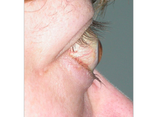 Marked protosis (forward movement of the eye) in severe TED
