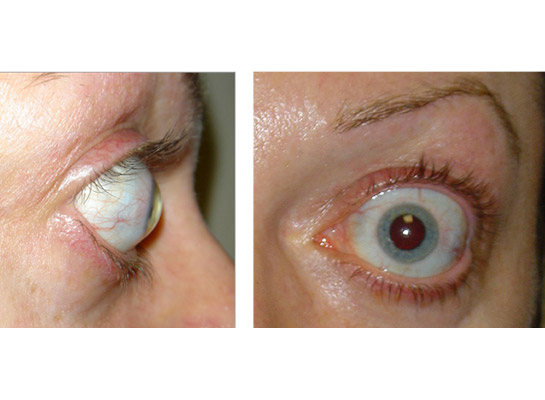 Examples of marked thyroid eye disease with retraction of the upper eyelid