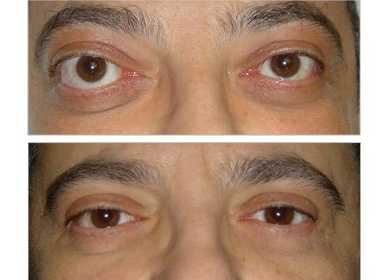 Proptosis in TED, before and after 2 wall orbital decompression surgery