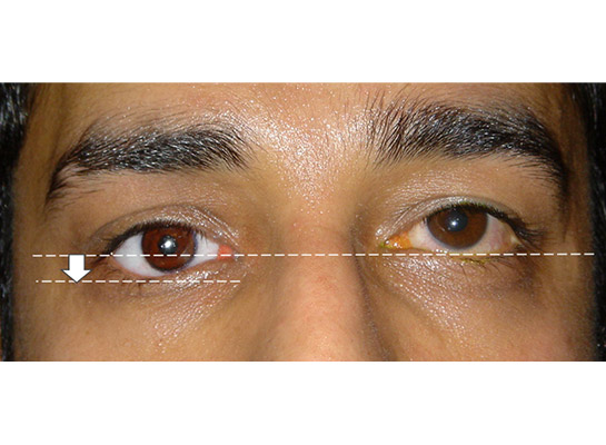 Right lower lid laxity due to a large heavy artificial eye (inadequate primary volume replacement at original surgery)
