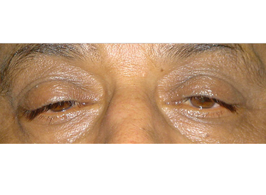 Ptosis (drooping upper eyelid) due to weakening of the retractor muscle attachment within the lid ('age related')