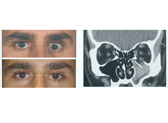 Orbital fracture. Sunken eye (enophthalmos) before and after surgery, with CT scan showing fracture of the orbital floor