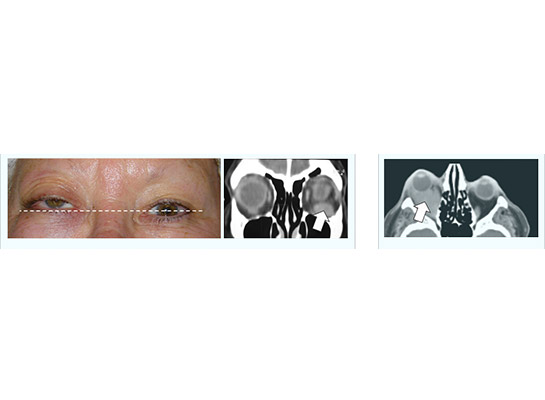 Orbital lymphoma elevating right globe, with CT scan showing mass on orbital floor. Treated with radiotherapy Second example (right) showing lymphoma behind the eye