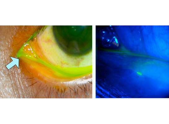Narrowing of the tear duct opening (punctum), point shown by arrow (left) and by fluorescein (right)