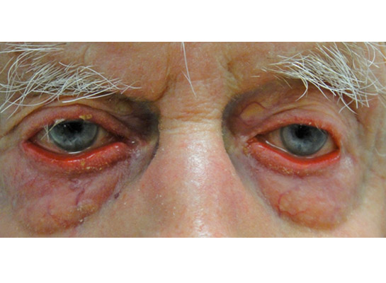 Anterior blepharitis with crusting of the lid margins (arrow) and ectropion of the eyelids due to lid laxity