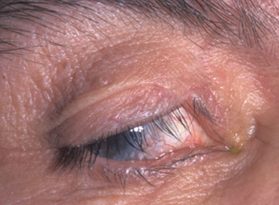 Previous upper lid injury requiring repair with skin graft