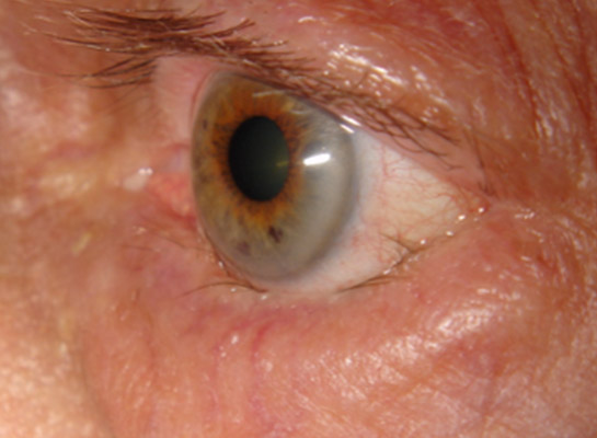 Entropion (inturning) of the lower eyelid with eyelashes turned against the surface of the globe