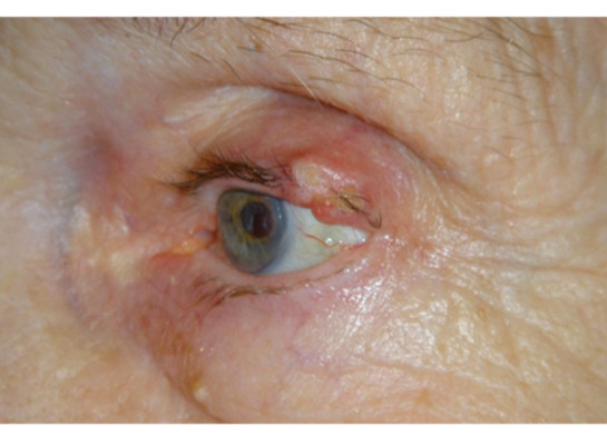 Squamous cell carcinoman of the upper eyelid