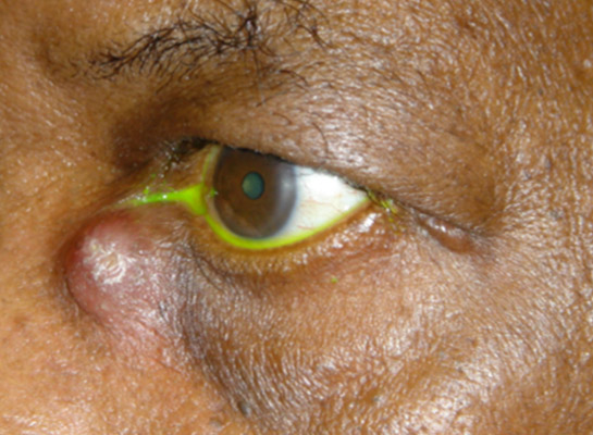 Mucocoele of the lacrimal sac (note yellow dye failing to drain)