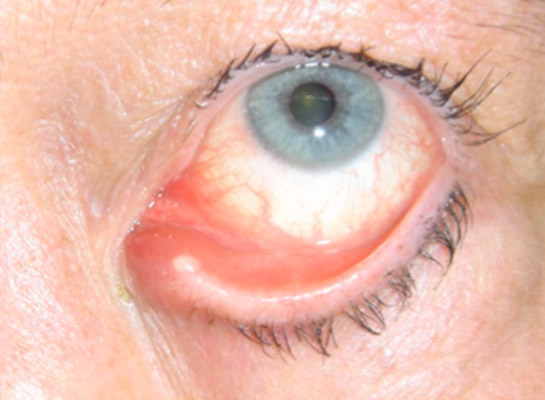 Chronic infection of the canaliculus with punctal discharge