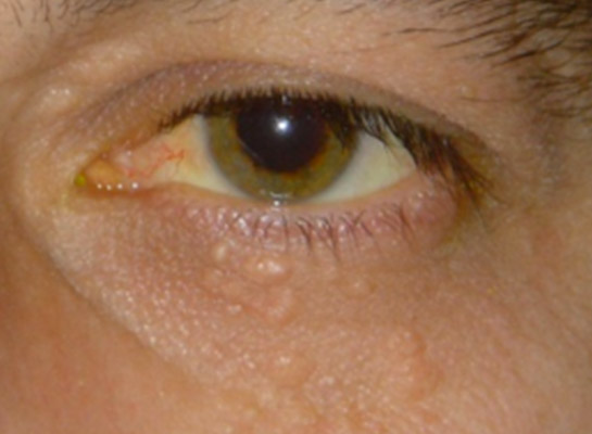 cysts lumps and bumps the dh verity eye practice