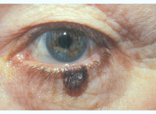Melanoma of the lower eyelid