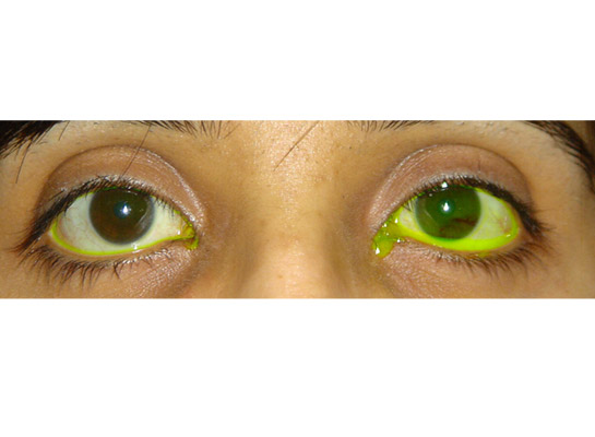 Watery eye with slow drainage of tears (note yellow dye) due to previous viral infection and canalicular blockage