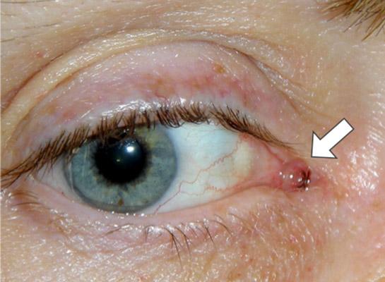 Lacrimal drainage tube (arrow)