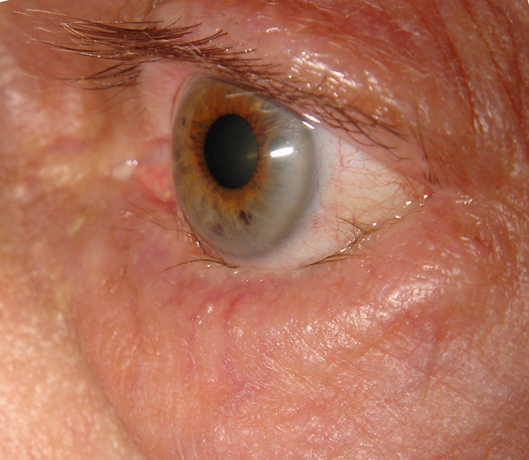 Irritable eye due to in-turning of the lower eyelid (entropion) against the eye.