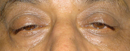 Diagnosis and Treatment of Eyelid Disorders
