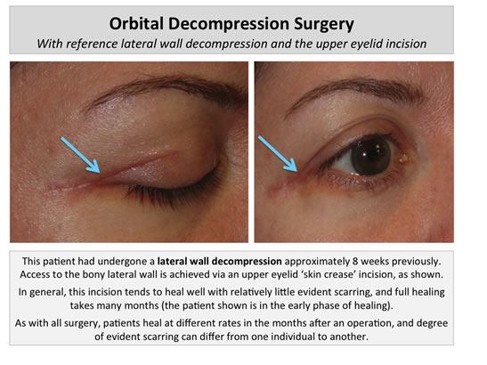 orbital-decompression-surgery-1s