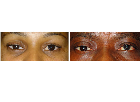 Examples of patients who have undergone eviscerations, with fitting of an artificial eye 4 - 6 weeks later